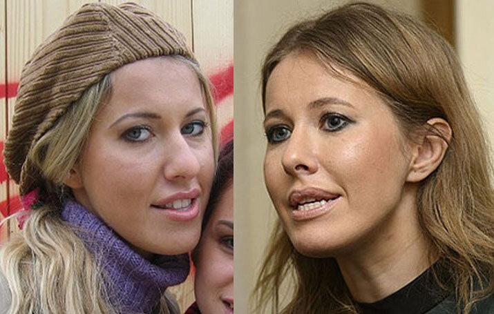 Российские звезды, которым пластическая операция пошла на пользу