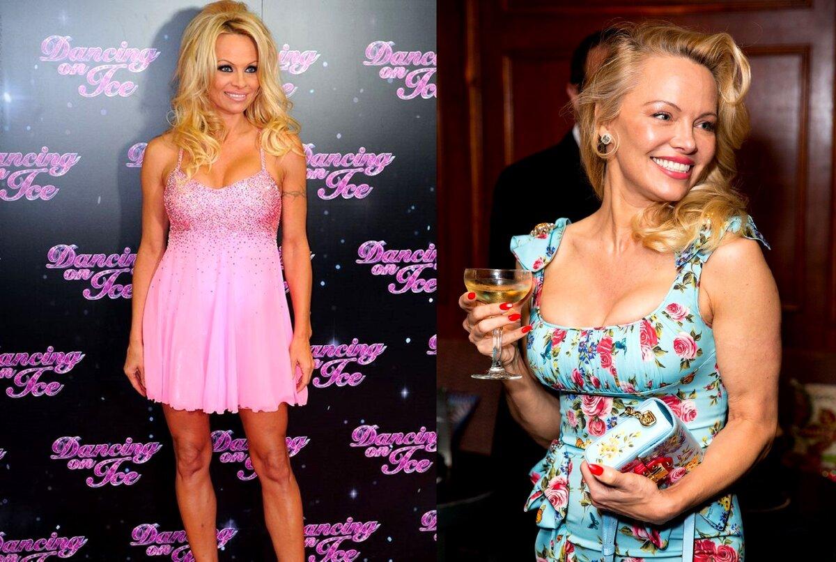 7 знаменитостей Голливуда, которые прославились дурным вкусом